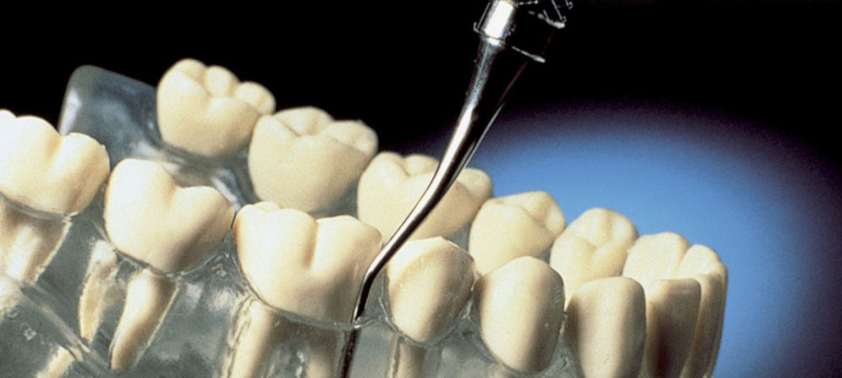 Periodontal Treatment Tonawanda Dentist