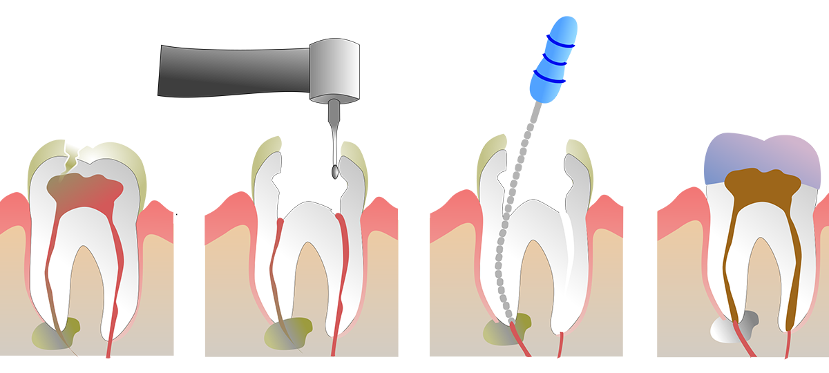 Root Canal Procedures in Buffalo, NY